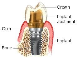 implant parts.jpg